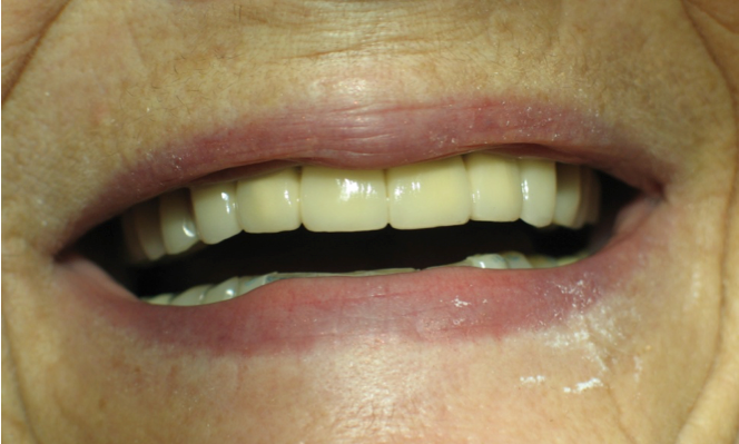 Porcelain-Crowns-and-Partial-Denture-After-Image
